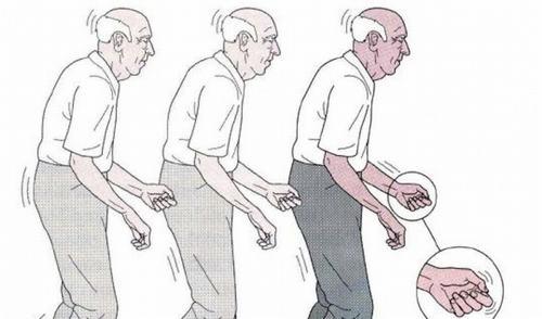 Bệnh Parkinson gây ra những triệu chứng như run tay chân, đi lại không vững