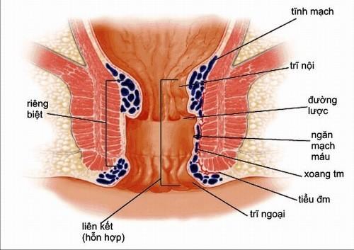 Đại tiện ra máu có thể là dấu hiệu bệnh trĩ