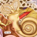 Hội chứng tiền đình và những điều cần biết