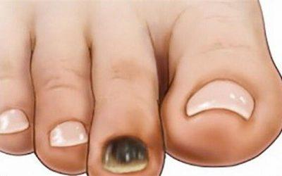 Móng chân bị đen là bệnh gì?