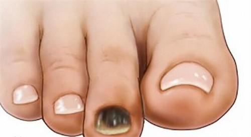 móng chân bị đen là bệnh gì