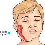 Triệu chứng quai bị và cách phòng ngừa