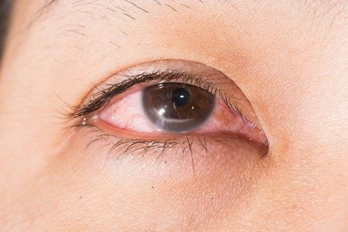 Bệnh viêm giác mạc cần được phát hiện sớm và điều trị sớm, hiệu quả.