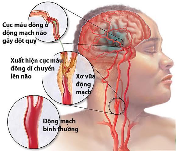 Nhồi máu não chiếm từ 80 đến 85% số trường hợp người bệnh bị đột quỵ não.