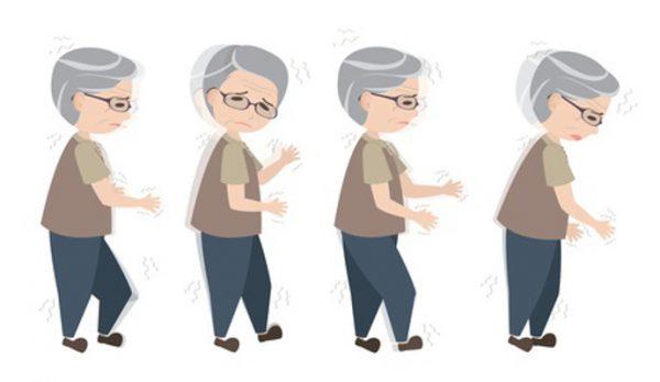 Khi mắc bệnh Parkinson, tư thế đứng của bệnh nhân dễ bị chuyển sang dạng cong hoặc có thể bị mất cân bằng.