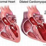 Bệnh viêm cơ tim và những điều cần biết