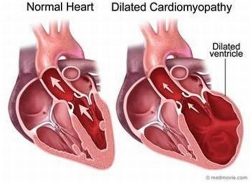 Bệnh viêm cơ tim