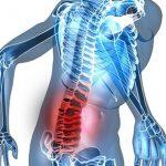 Chấn thương cột sống: Điều trị ngay kẻo mang tật suốt đời