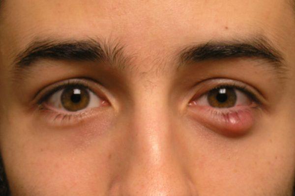 Thủ thuật trích chắp trong chuyên khoa mắt khá phổ biến, song cần được thực hiện với chuyên môn, kỹ thuật tốt của bác sĩ giỏi.