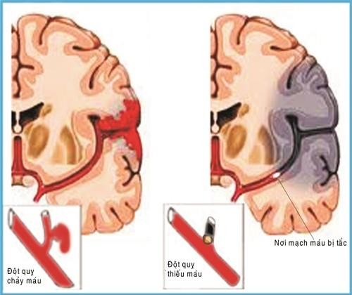 Chụp vi tính cắt lớp (CT) là kỹ thuật quan trọng giúp ghi lại hình ảnh não để xác định loại đột quỵ.