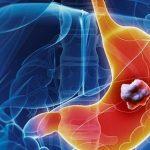 Dấu hiệu ung thư dạ dày giai đoạn cuối