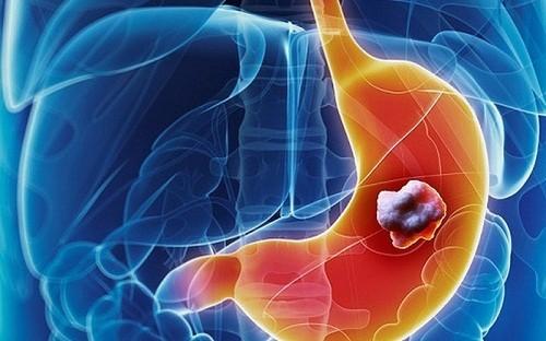 Ung thư dạ dày là bệnh lý thường gặp ở đường tiêu hóa, gây nguy hiểm tới tính mạng nếu không phát hiện và điều trị sớm