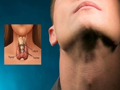 Nổi u ở cổ là dấu hiệu ung thư tuyến giáp giai đoạn cuối