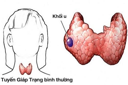 dấu hiệu ung thư tuyến giáp