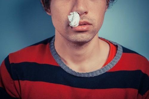 Người bệnh bị ung thư vòm họng còn có thể gặp tình trạng chảy máu cam, ù tai, khó nuốt...