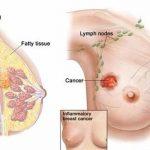 Dấu hiệu ung thư vú ở phụ nữ