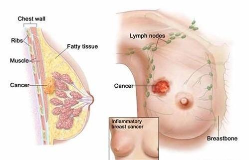Thay đổi hình dạng và kích thước vú cũng có thể là dấu hiệu ung thư vú ở phụ nữ chớ coi thường