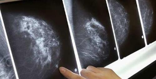 Để chẩn đoán ung thư vú ngoài thăm khám lâm sàng cần kết hợp chụp X-quang tuyến vú, siêu âm vú...