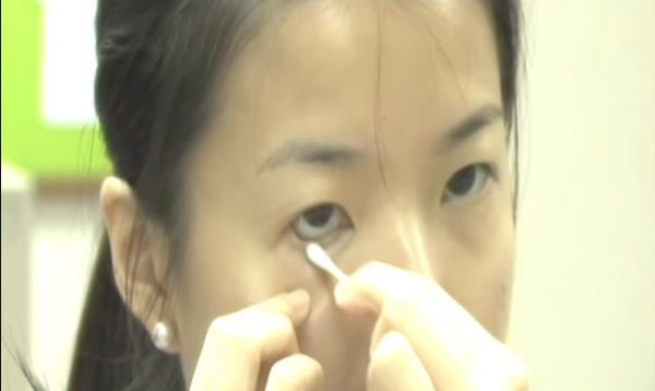 Lấy dị vật giác mạc là thủ thuật chuyên môn nhãn khoa khá phổ biến được sử dụng trong điều trị mắt bị tổn thương do dị vật xâm nhập.