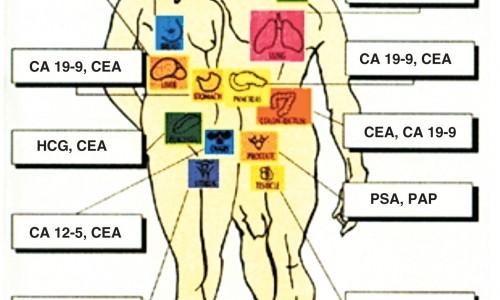Nếu nghi ngờ mắc ung thư tuyến tụy, ung thư gan hoặc tắc nghẽn ống dẫn mật thì nên làm xét nghiệm tìm CA 19-9
