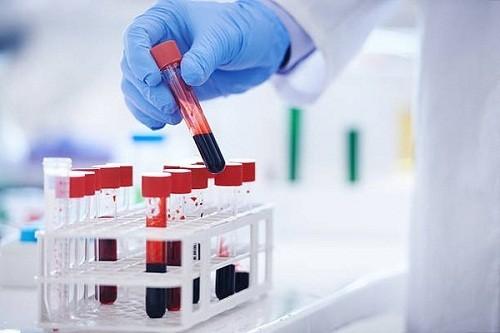 Định lượng CEA trong máu