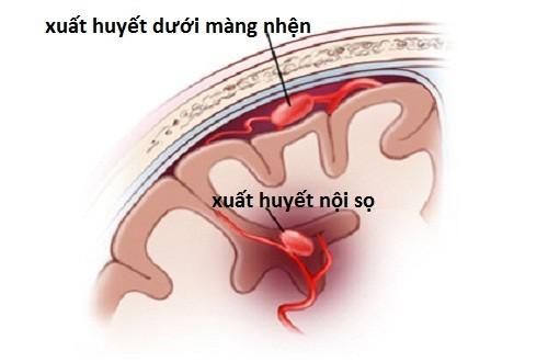 Xuất huyết não là bệnh lý thần kinh vô cùng nguy hiểm, gây nguy cơ tử vong cao.