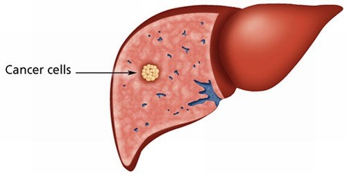 U gan cần được phát hiện sớm và chẩn đoán chính xác