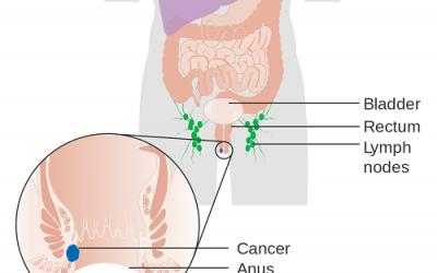 Hình ảnh ung thư hậu môn