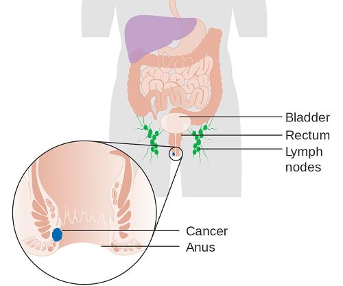 Ung thư hậu môn là do sự phát triển của các tế bào bất thường không kiểm soát được trong cơ thể. Khi các tế bào bất thường tích tụ dần sẽ tạo thành khối u.
