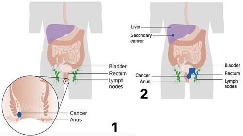 Ngược lại, nếu phát hiện và điều trị muộn, ung thư hậu môn sẽ di căn xa sang các bộ phận khác trong cơ thể như gan, hạch bạch huyết...