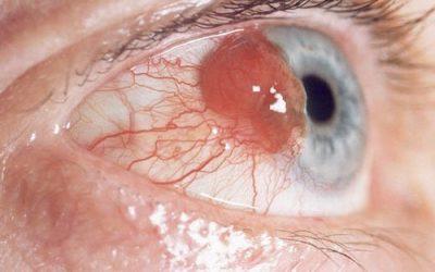 Hình ảnh ung thư mắt