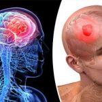 Hình ảnh ung thư não