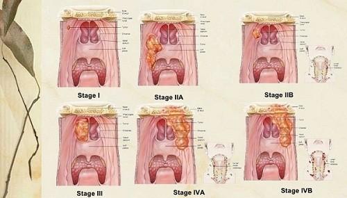 Các giai đoạn hình ảnh ung thư vòm họng cho thấy mức độ nguy hiểm của bệnh nên cần được điều trị cần kiên trì, liên tục.