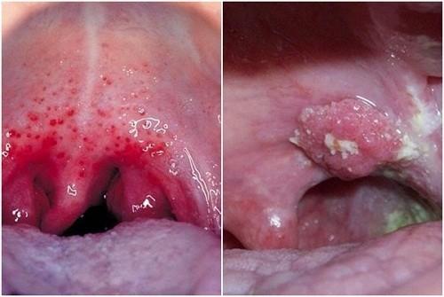 Đây là căn bệnh ác tính xuất hiện khi một hoặc một vài tế bào biểu mô trong vòm họng bị biến đổi gen, tạo thành khối u trong vòm họng.