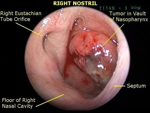 Người bệnh có thể quan sát rõ hơn hình ảnh ung thư vòm họng qua nội soi vòm họng khi tiến hành tầm soát sớm bệnh.