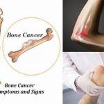 Hình ảnh ung thư xương