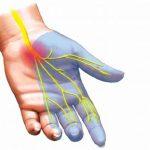 Hội chứng ống cổ tay và cách phòng ngừa