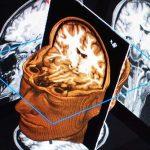 Khám và điều trị chấn thương sọ não