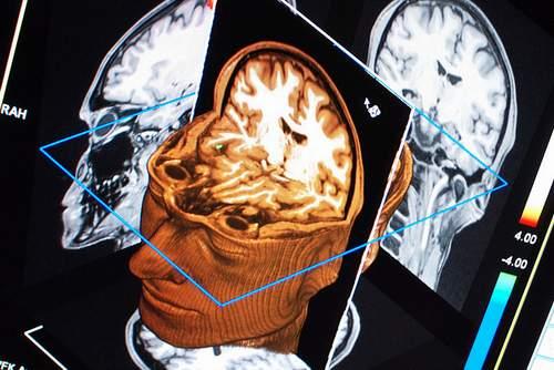 Chấn thương sọ não thường bắt nguồn từ các loại chấn thương bao gồm chảy máu, chấn động mạnh (rung động não hoặc não bị bầm).
