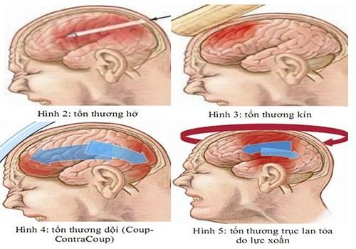 Để xác định mức độ bệnh, bác sĩ sẽ tiến hành khám lâm sàng (đặc biệt thông qua chuyển động mắt và đồng tử) cùng với kiểm tra cơ bản