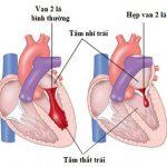 Khám và điều trị bệnh hở van tim