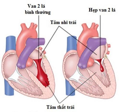 Hở van tim là bệnh lý tim mạch thường gặp