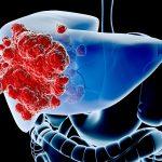 Khám và điều trị ung thư gan