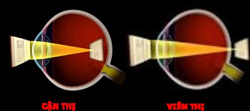 Đo khúc xạ mắt để phát hiện cận, viễn, loạn thị, đo kính mắt là hoạt động khám vô cùng quan trọng trong điều trị các tật khúc xạ mắt.