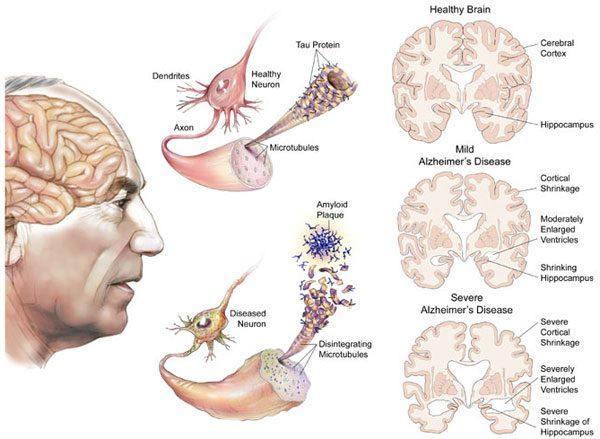Alzheimer ảnh hưởng xấu đến trí nhớ, ngôn ngữ và tư duy.