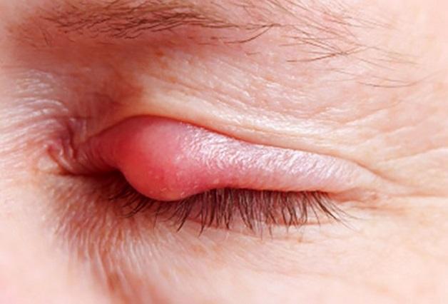 Tránh lấy tay hay khăn thô ráp dụi mắt, chùi mắt vì có thể gây kích ứng mắt và khiến nhiễm khuẩn lây lan lẹo mắt