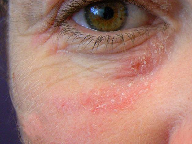 ngứa mí mắt là bệnh gì