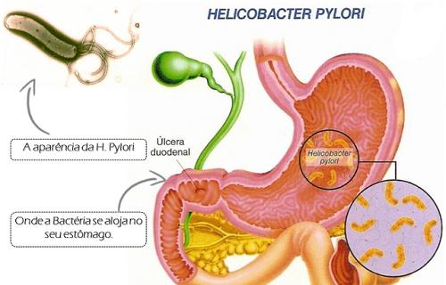 Vi khuẩn HP được cho là nguyên nhân chính gây ra các bệnh ở dạ dày, trong đó có ung thư dạ dày