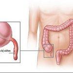 Đau ruột thừa ở vị trí nào?