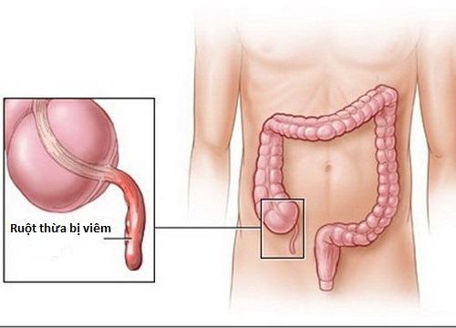 Đau ruột thừa ở vị trí nào